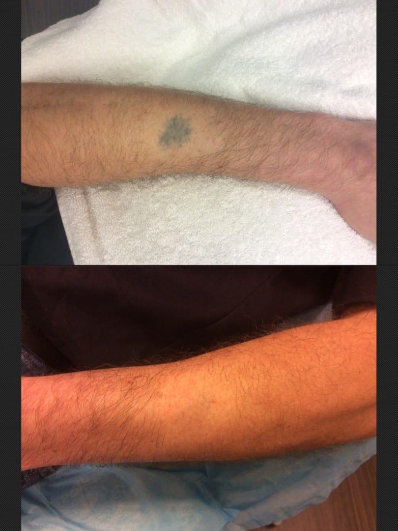 Tatoeage Verwijderen Arm Voor En Na Huidverbetering