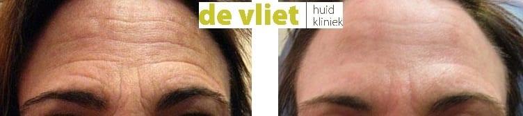 Rimpels verwijderen, pixel behandeling, fractional laser voor en na foto, pixel voor na, erbium laser behandeling, CO2 laserbehandeling