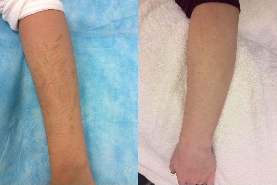 Automutilatie zelfbeschadiging littekens verwijderen Huidkliniek De Vliet Leiden, litteken verwijderen