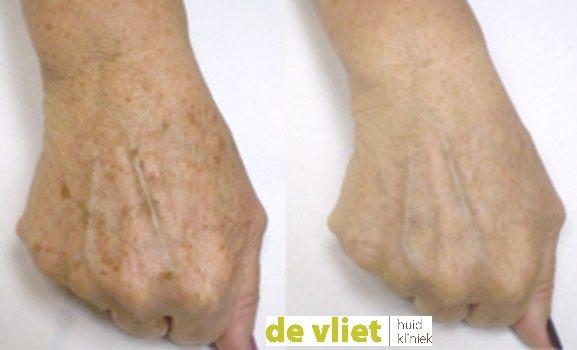 Handverjonging, behandeling tegen oude handen, oude handen behandeling, pigmentvlek van de hand verwijderen